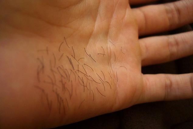El suero del acné como usar